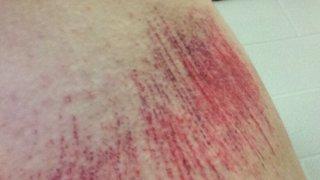Injuries cheam ladies 1s 2014/15