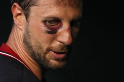 Vision of 20/20 Starts With A Black Eye